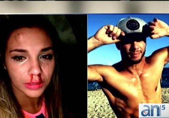 Ex bailarín de Ricky Martín acusado de golpear a su novia se presenta  en corte