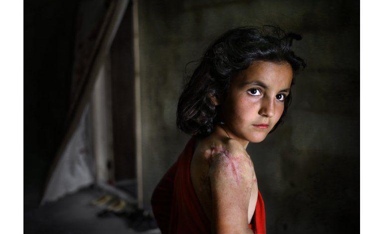 El 80% de los niños sufren por la guerra en Siria: UNICEF