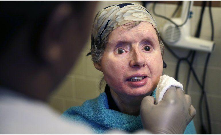 Ingresan por complicaciones a paciente de trasplante facial