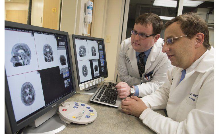 Tomografía muestra proteína que indica alzhéimer