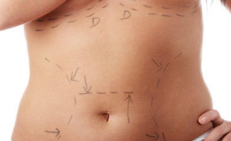 Cirugías estéticas y sus riesgos para la salud