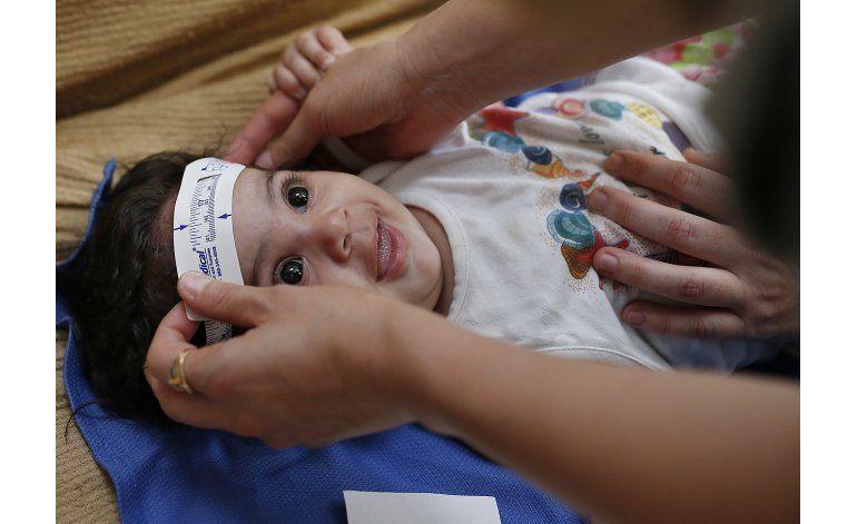 Buscan precisar riesgo de defectos congénitos por zika