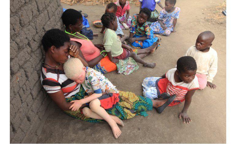 Aumenta el asesinato de albinos en Malaui