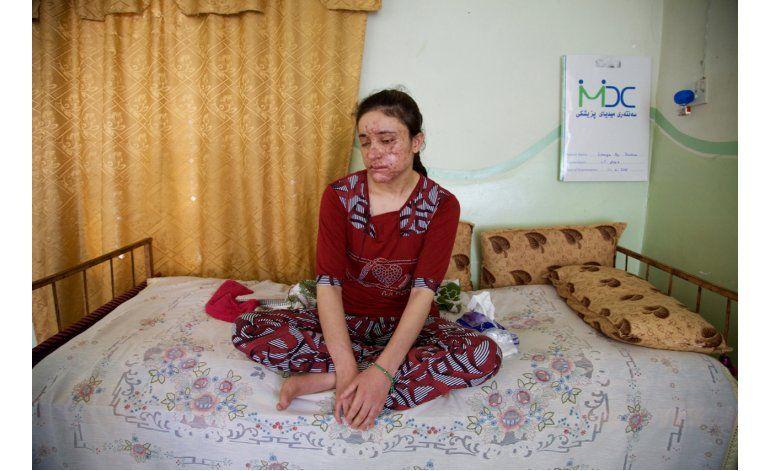 Las esclavas sexuales de la agrupación Estado Islámico