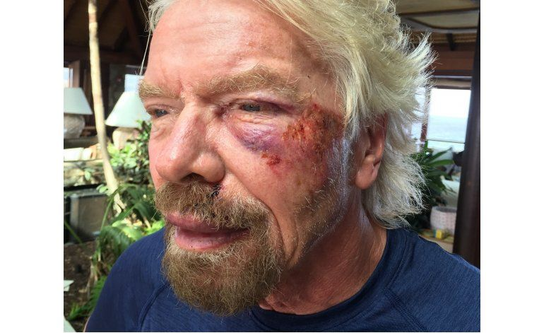 Richard Branson sufre accidente de bicicleta