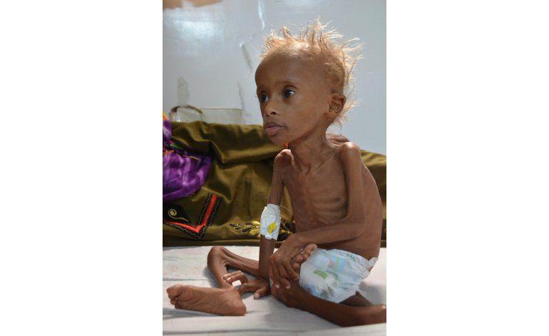 Niños sufren desnutrición severa en zonas de guerra en Yemen