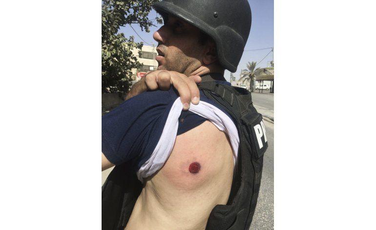 Fotógrafo AP resulta levemente herido por fuerzas israelíes