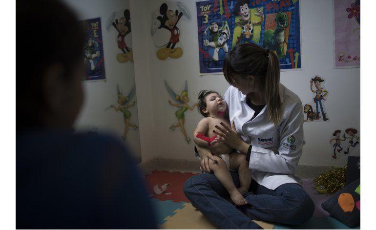 Brasil supervisará evolución de bebés con zika por 3 años