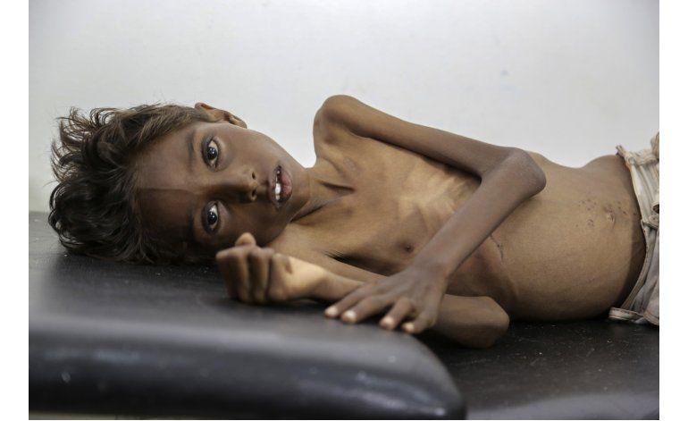 Millones de niños padecen inanición en Yemen debido a guerra