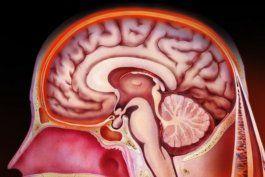 el lapiz gigante destacado por el mit que puede diagnosticar meningitis sin una puncion lumbar