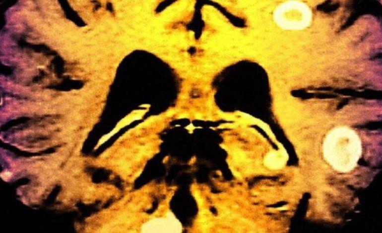 Tuberculosis en el cerebro: El dolor es tan fuerte que me dan ganas de cortarme la cabeza
