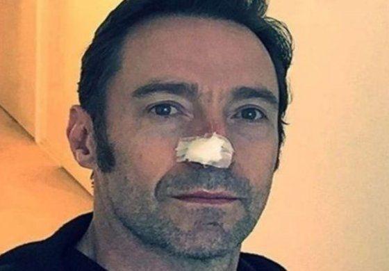 Qué es el carcinoma basocelular, el cáncer de piel que sufre el actor Hugh Jackman