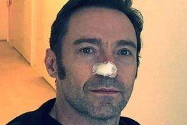 que es el carcinoma basocelular, el cancer de piel que sufre el actor hugh jackman