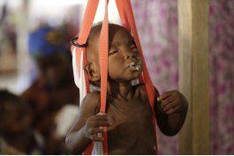 unicef alerta del riesgo de hambruna para un millon de ninos