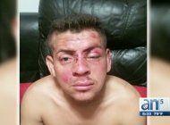 companero de trabajo asalta a otro en hialeah