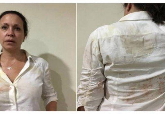 La líder opositora venezolana María Corina Machado golpeada brutalmente por agentes del gobierno
