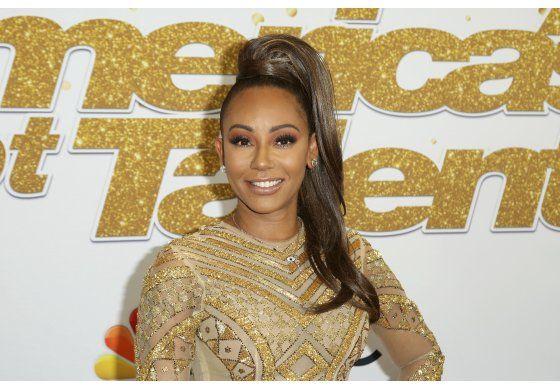 Mel B de las Spice Girls sufre lesión en la mano
