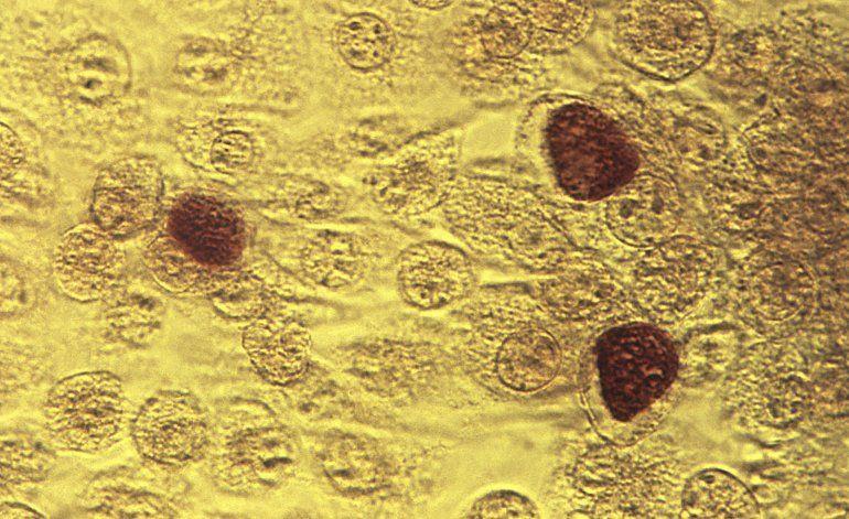Aumentan los casos de 3 enfermedades venéreas en EEUU