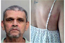 en corte un hombre de origen cubano acusado de golpear y tratar de estrangular a su esposa en hialeah