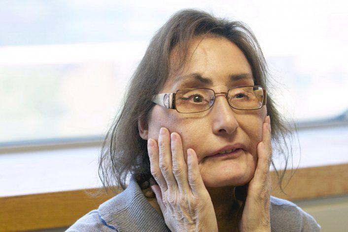 Fallece 1ra receptora de trasplante facial parcial en EEUU