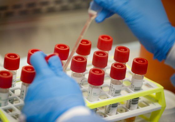 EEUU: Pruebas para coronavirus son insuficientes para asilos