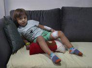 los ninos en beirut sufren trauma tras la potente explosion