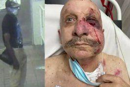 otro hispano es victima de una brutal golpiza a manos de un afroamericano en el metromover de miami