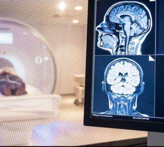¿Cuál es el efecto cognitivo del COVID? El cerebro de algunos pacientes podría envejecer hasta 10 años