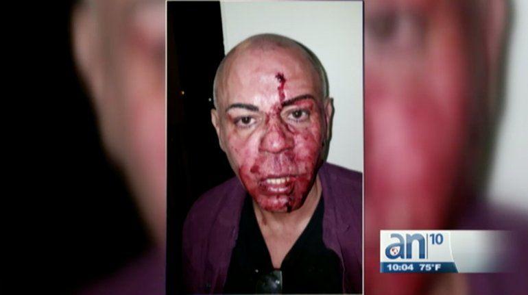 Hombre demanda a Lyft después de haber sido atacado a golpes por su compañera de viaje