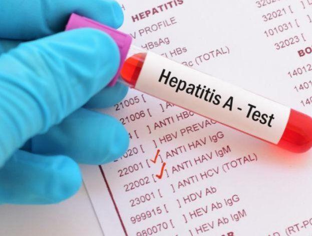 Un brote de hepatitis en el condado Broward ha puesto en alerta a la comunidad