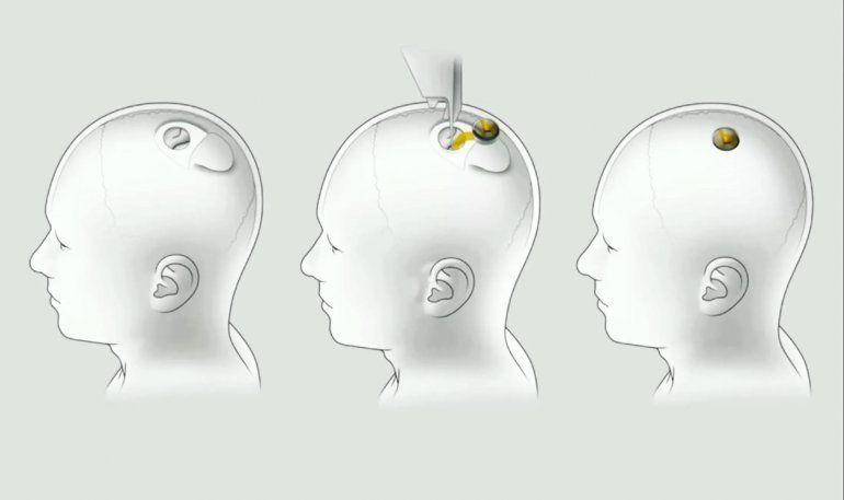 El polémico chip desarrollado por Elon Musk, podría comenzar a ser implantado en cerebros humanos a fin de año