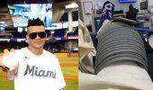 Randy Malcom sometido a una operación quirúrgica en Miami