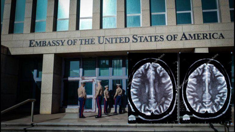 Ataques acústicos en La Habana le cambiaron la estructura del cerebro a  diplomáticos estadounidenses