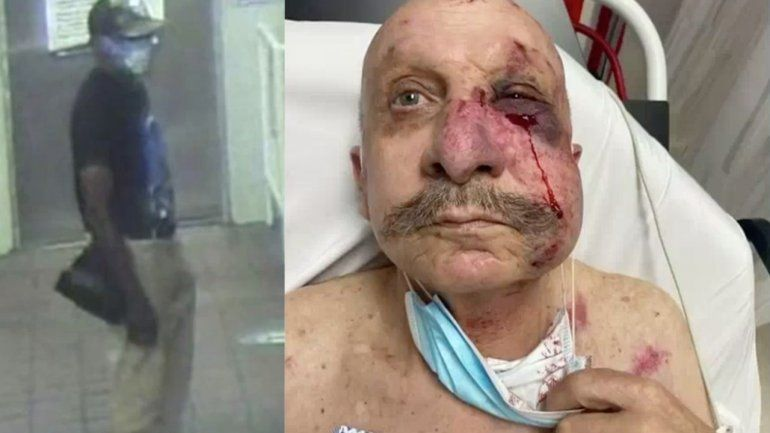 Otro hispano es víctima de una brutal golpiza a manos de un Afroamericano en el Metromover de Miami