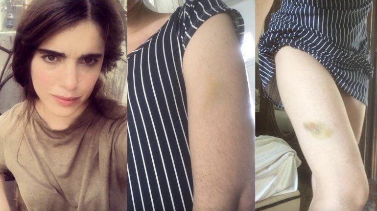 Carolina Barrero: agredida, desnudada y acusada de desacato por la Policía cubana