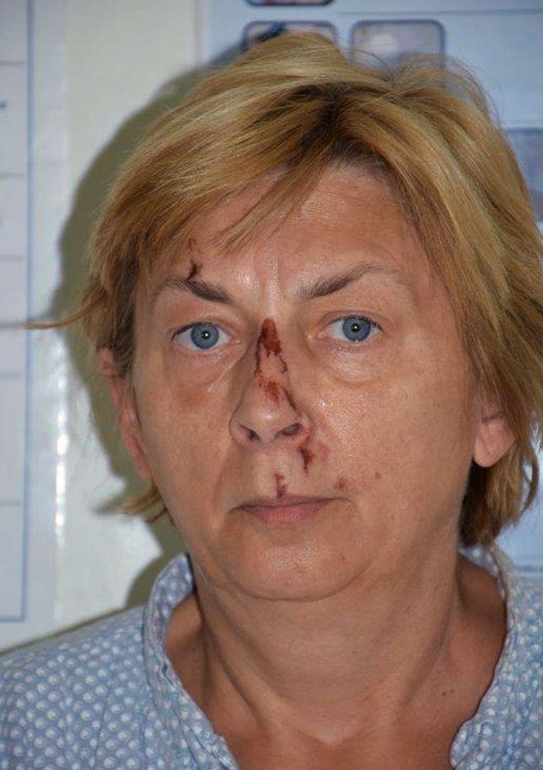 Policía croata busca ayudar a mujer que no recuerda quién es